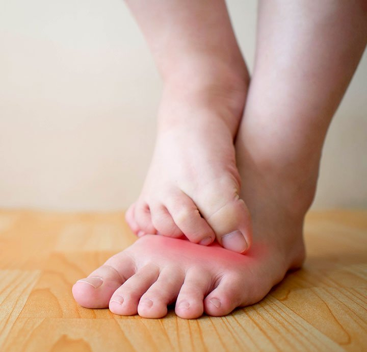 Image of Athletes Foot.