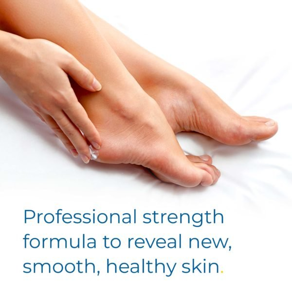 professional strength formula to reveal new smooth healthy skin