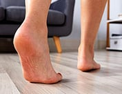 Image of person walking with bottom of foot showing foot corns and foot calluses
