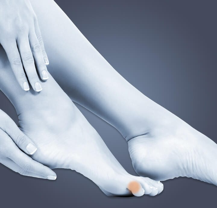 Image of woman holding foot with corn on  pinky toe.