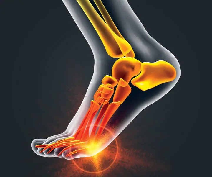 Image of Dr. Scholl's Pain Relief, Ball  Foot Pain