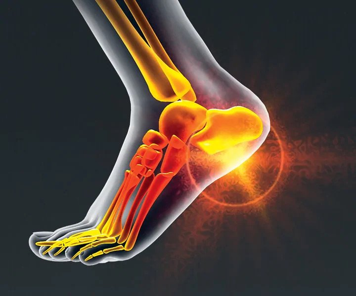 Image of a person with Pain Relief,  Plantar Fasciitis