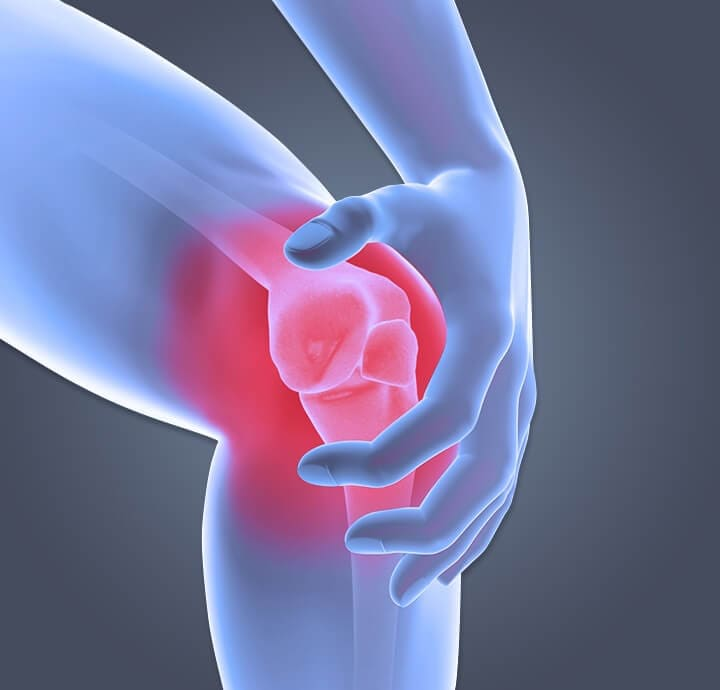 Image of a person with osteoarthritis  pain knee