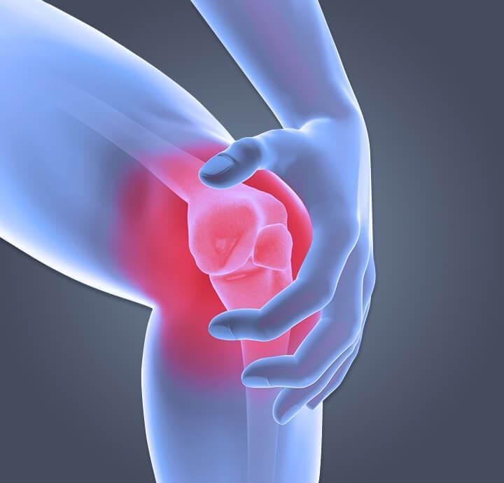 osteoarthritis-pain-knee