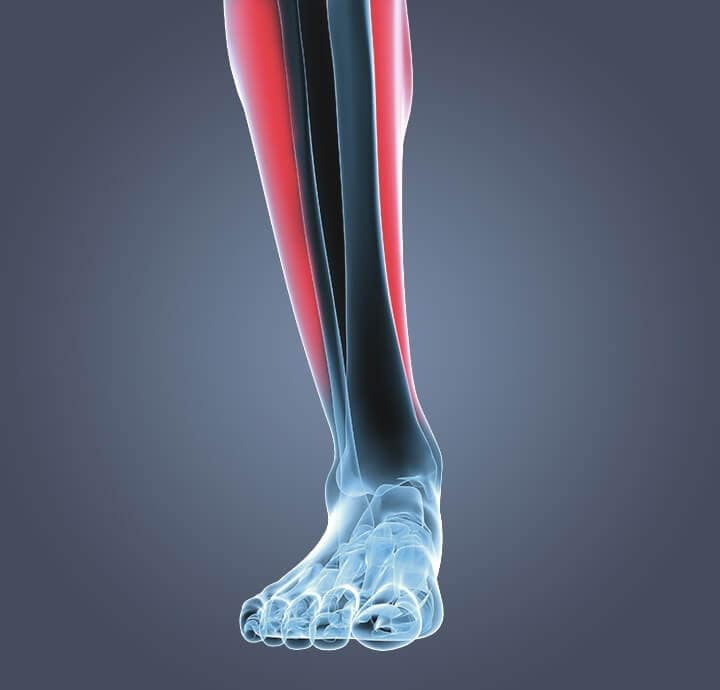 Image of a person with shin splints