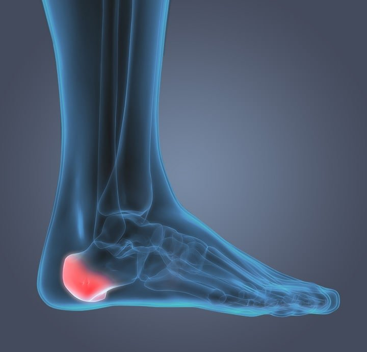 Image of internal foot showing pain from  heel or bone spurs.