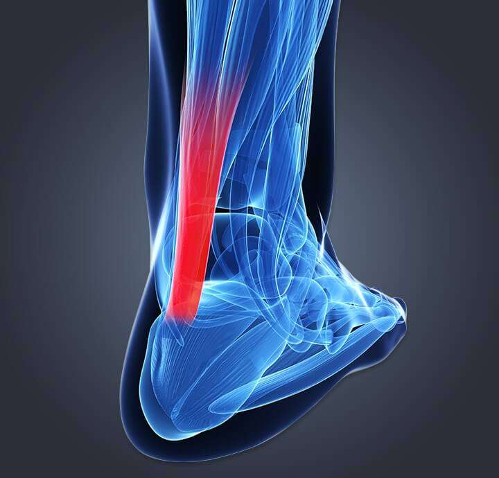 Image of internal  rear of foot to calf showing inflammation from achilles tendinitis.
