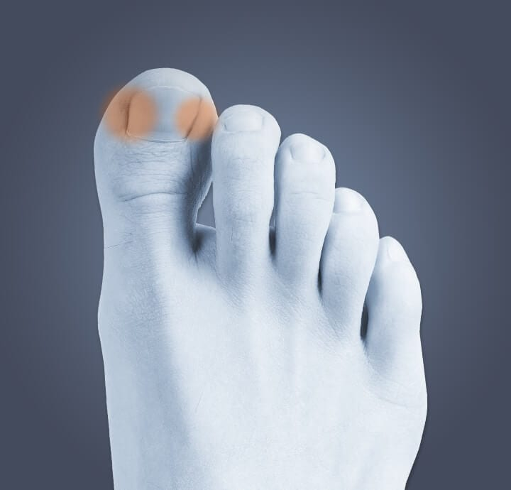 Image of top of foot indicating where  pain occurs from an ingrown toenail.