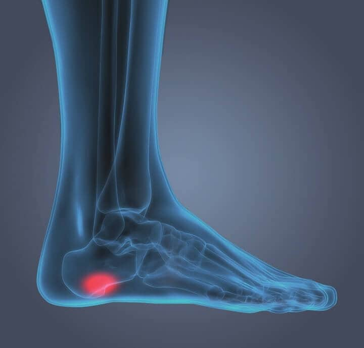 Image of internal foot showing pain from  plantar faciitis in the heel.