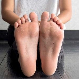 image of dry peeled feet