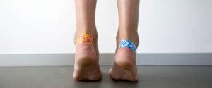 image of bandages on heels